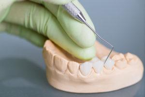 Dentures provided by Perdido Bay Dental