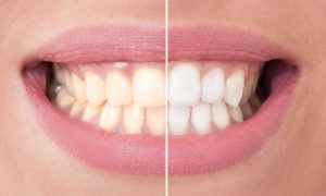 Teeth Whitening at Perdido Bay Dental