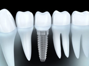 Implant Dentistry at Perdido Bay Dental